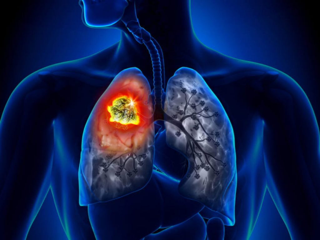 Especialista en cáncer de pulmón en Aguascalientes